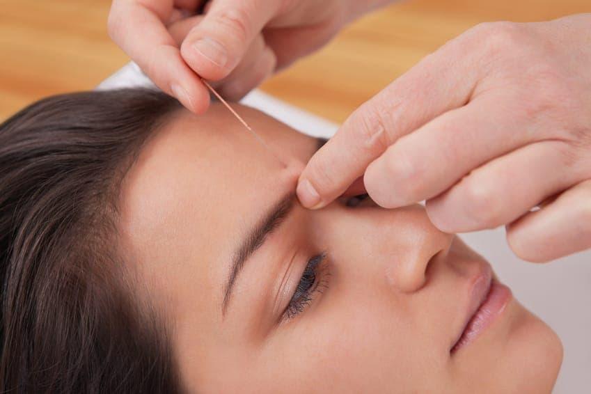 Kosmetische Akupunktur